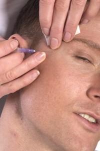 Botox bei Männern